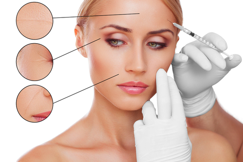 Woman receiving cosmetic treatment of injectables for problem areas on her forehead, crowsfeet, and nasolabial folds