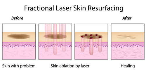 Colored drawing of the four steps of how fractional laser skin resurfacing works